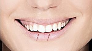 Desgaste Dentes Bruxismo