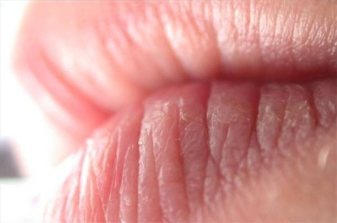 Lábios Rachados