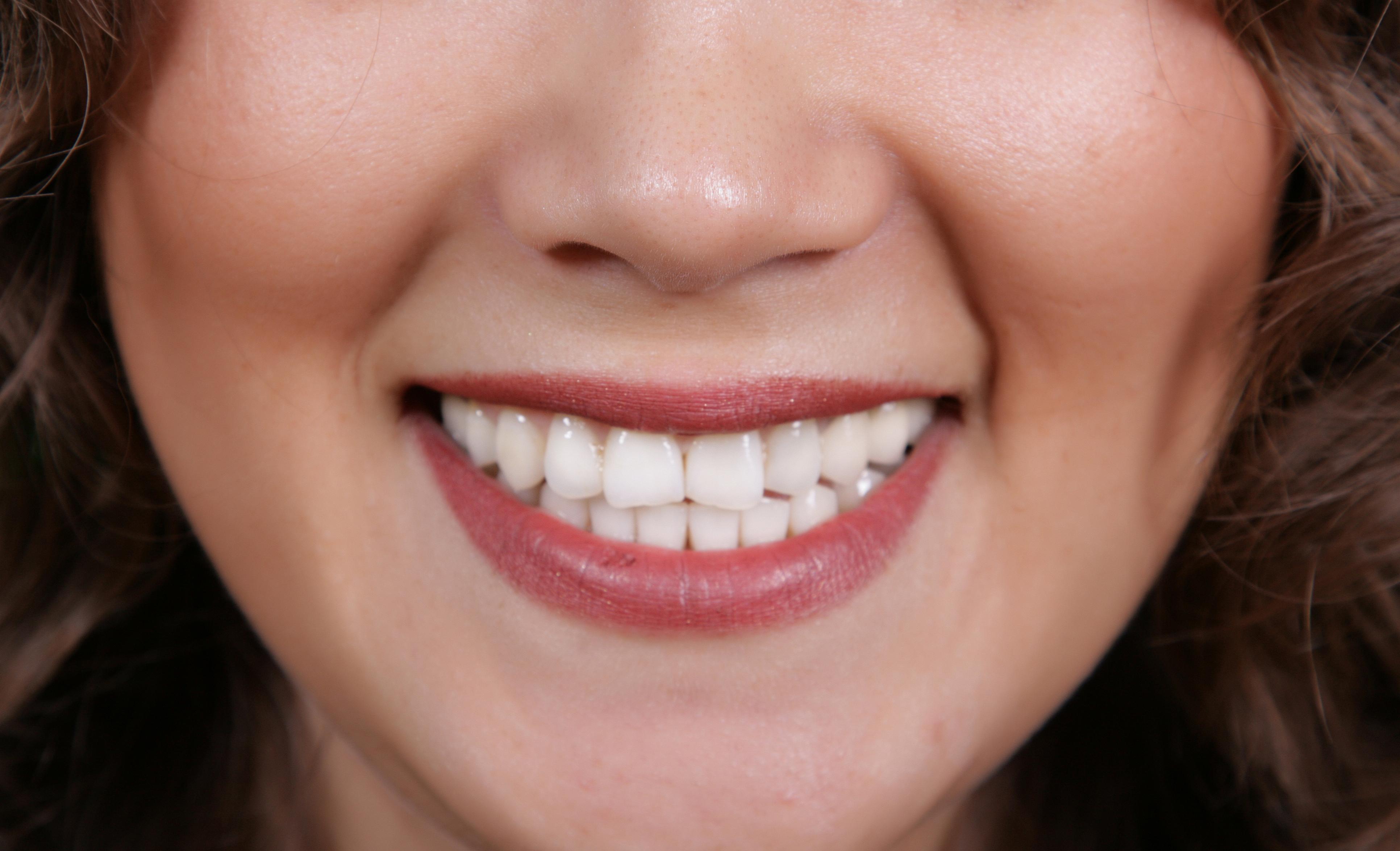 Sorriso Sem corredor bucal