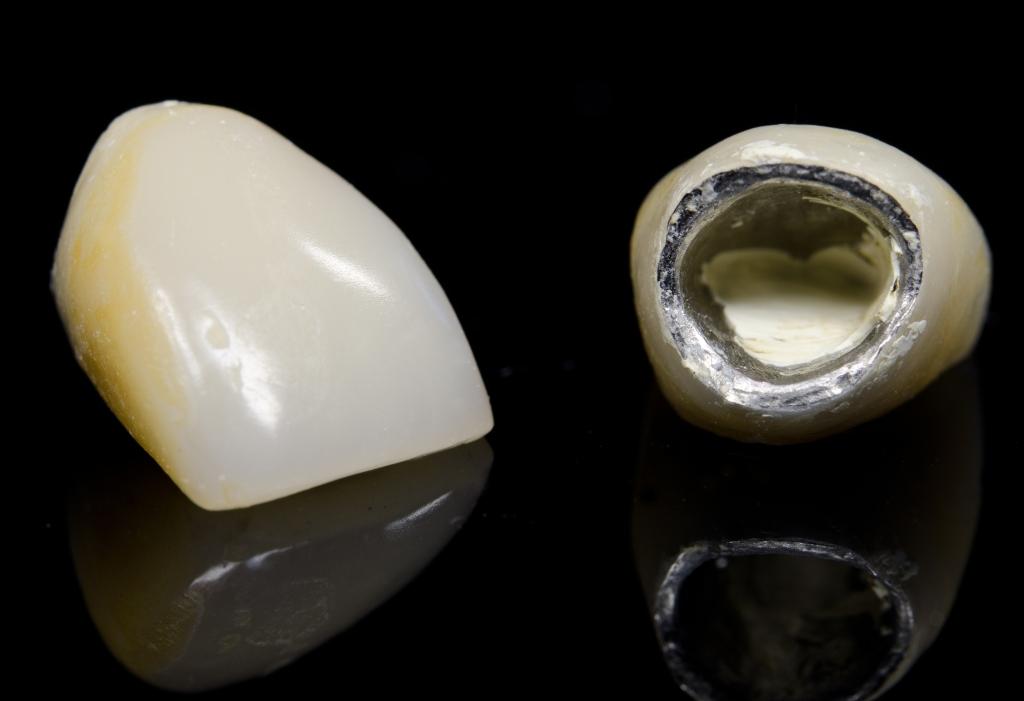 Metalocerâmica