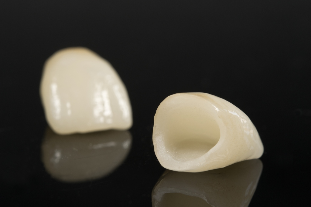 Dentes Perfeitos: Coroas Sem Metal