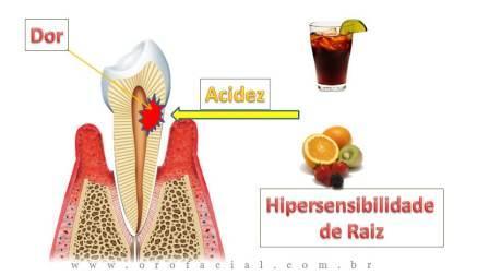 Dor De Dente: Exposição de Raiz Levando à Dor de Dente ao Frio