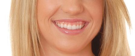 Dentes Perfeitos: Sorriso Gengival