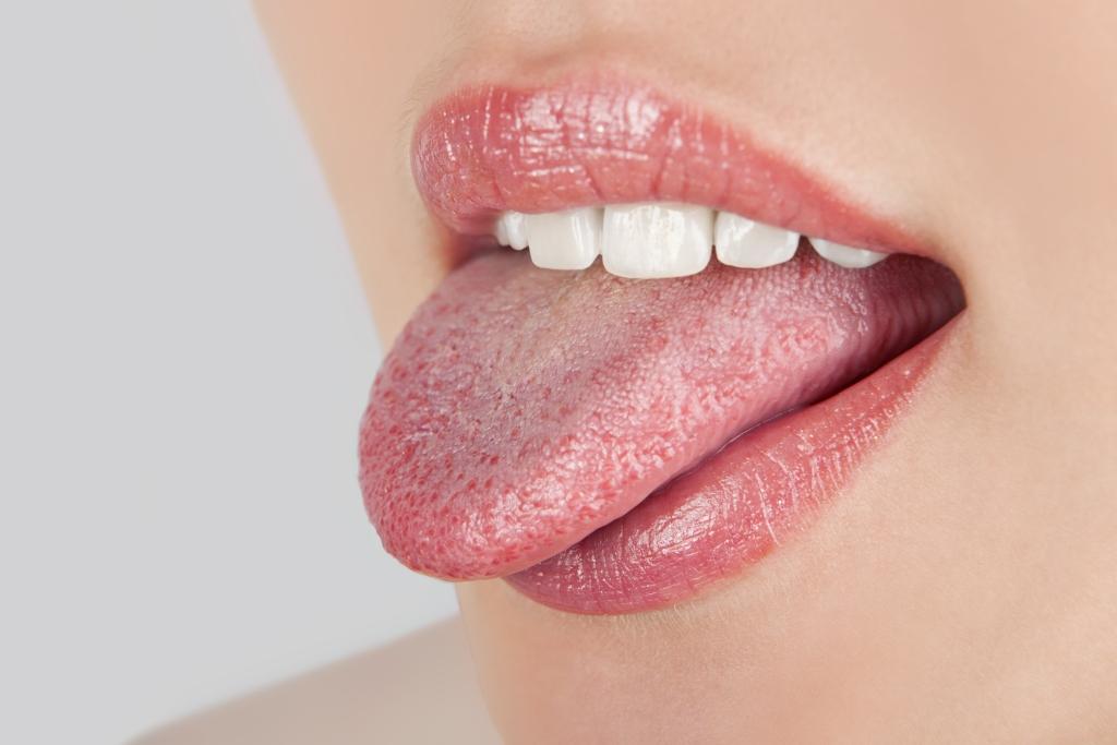 Saburra lingual halitose mau-hálito