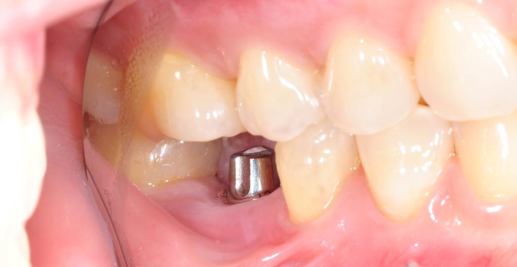 Implante Pronto para Receber Coroa Protética