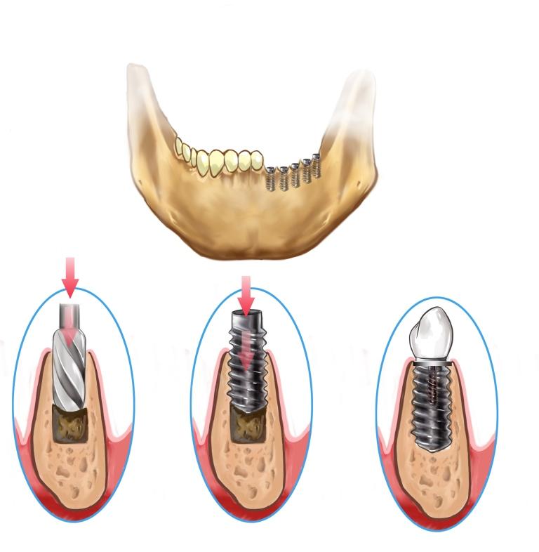 Implantes Dentais