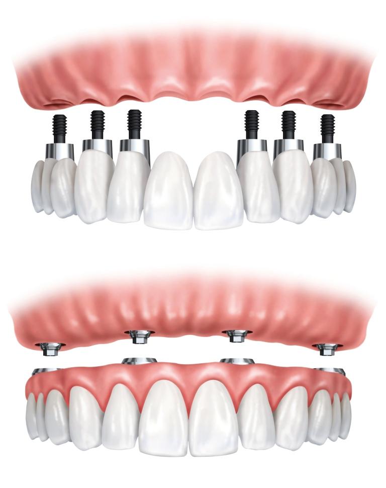 Implantes para reabilitação total