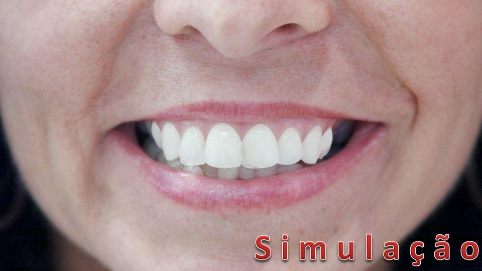 Sorriso Neutro Modificado