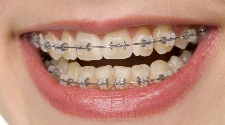 Dentes Pertitos: Ortodontia