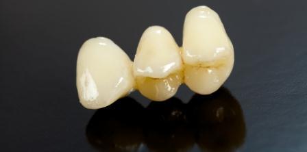 Dentes Perfeitos: Prótese Parcial Fixa Metal-Free