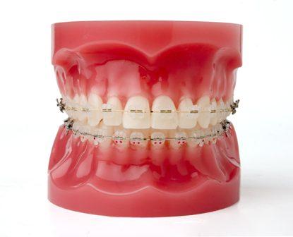 Dentes Perfeitos Ortodontia