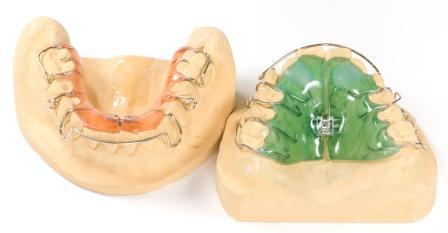 Dentes Perfeitos: Aparelhos Removíveis