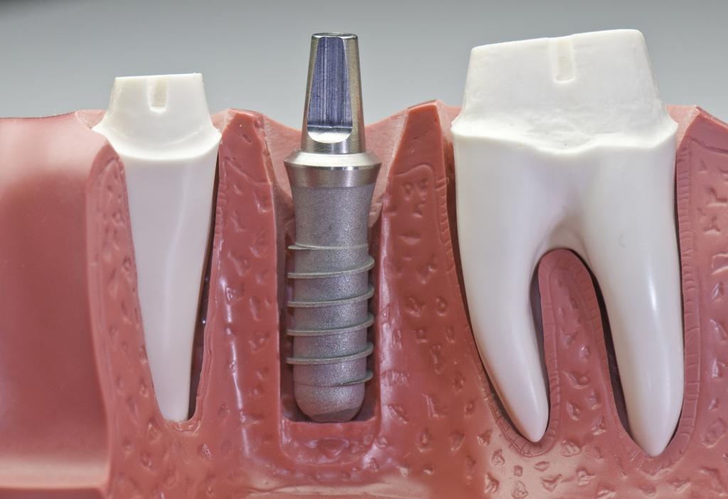 Coras Dentárias Sobre Dentes e Sobre Implantes