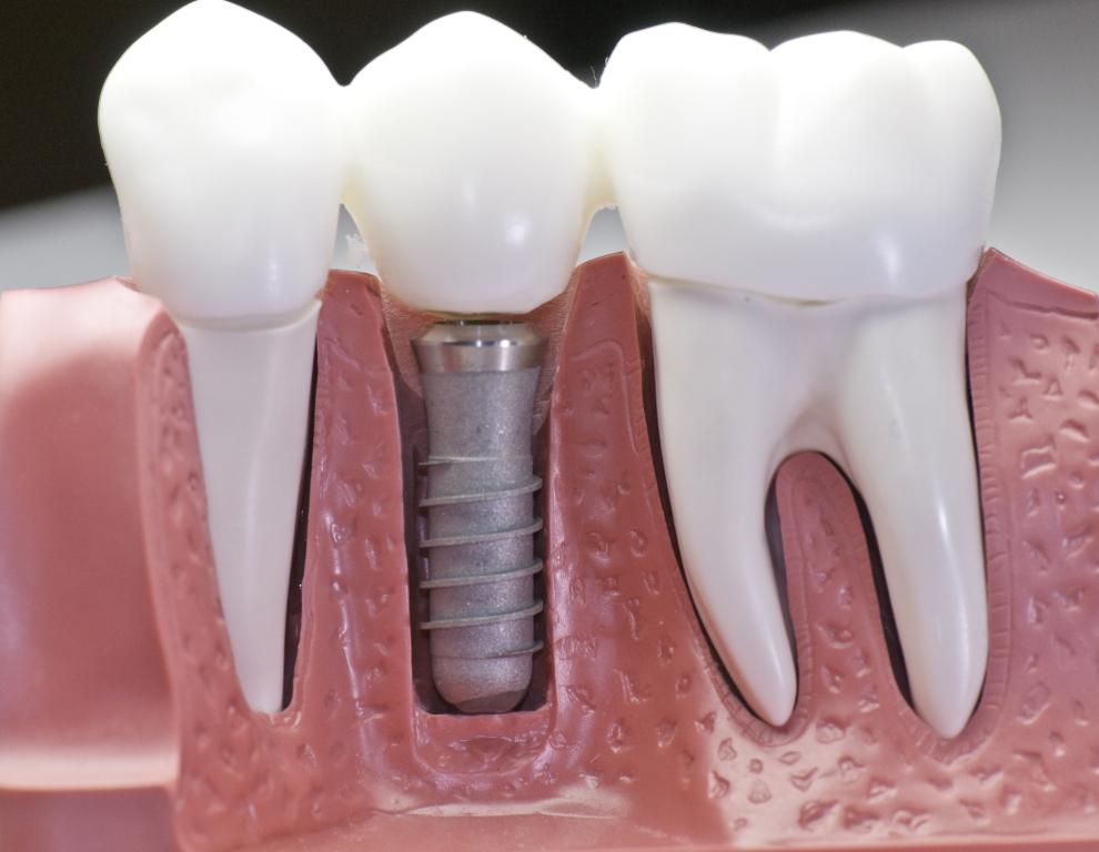 Coroas e Implantes Dentários