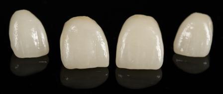 Dentes Perfeitos: Coroas Cerâmicas Sem Metal