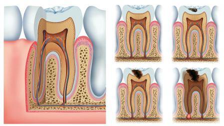Evolução da cárie dental