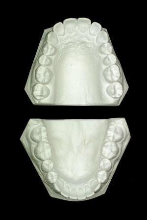 Dentes perfeitos: Modelos ortodônticos - Ortodontia