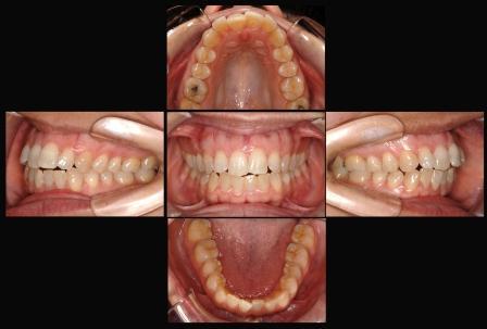 Dentes Perfeitos: Ortodontia Fotografias Intra-Orais