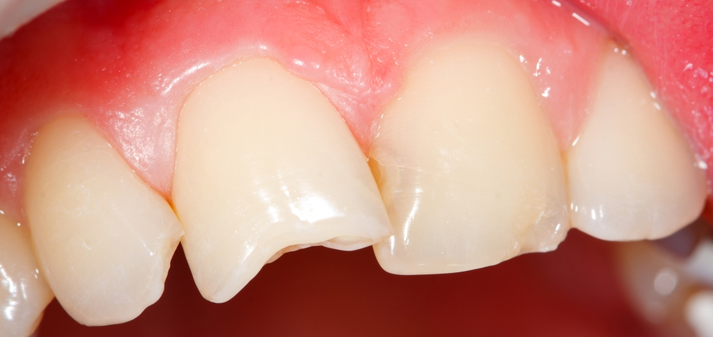 Desgaste Dentes Anteriores