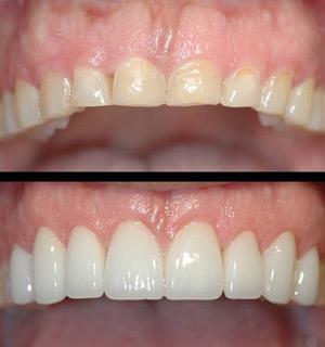 Dentes Gastos Dentes Não Aparecem Quando Sorrio