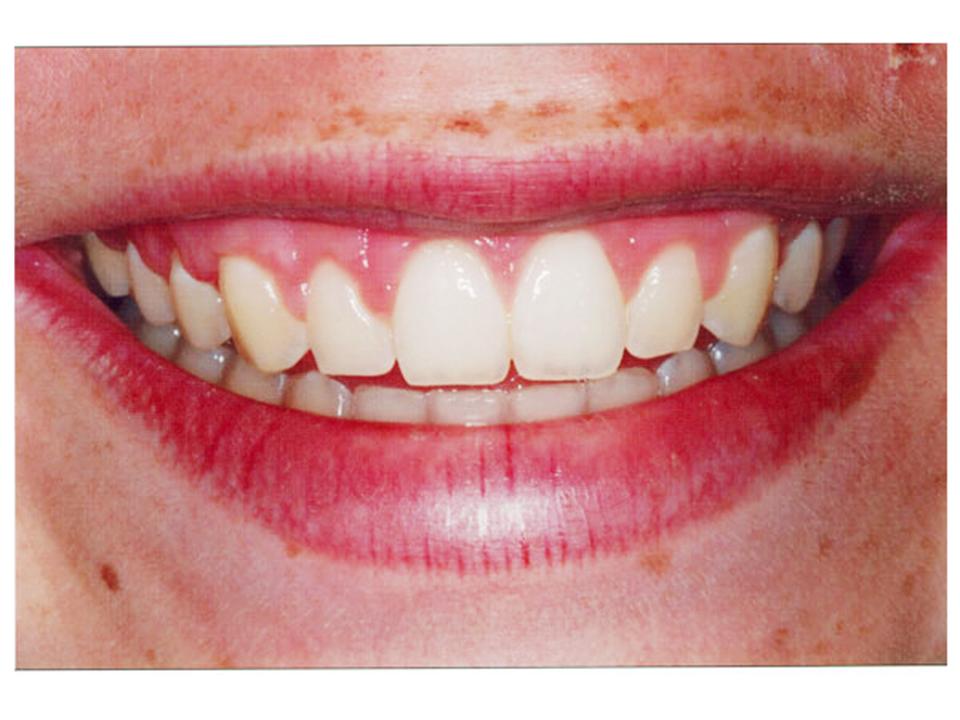 Erupção passiva. Dentes não aparecem quando sorriso
