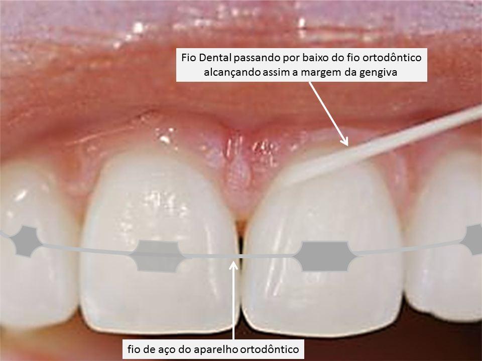 Fio Dental aparelho Ortodôntico