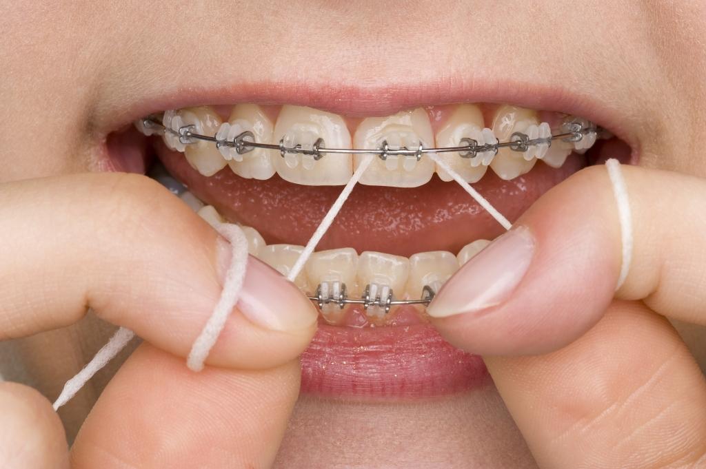 Aparelho Ortodôntico e Fio Dental