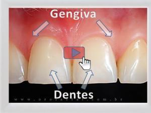 Saúde de Gengivas