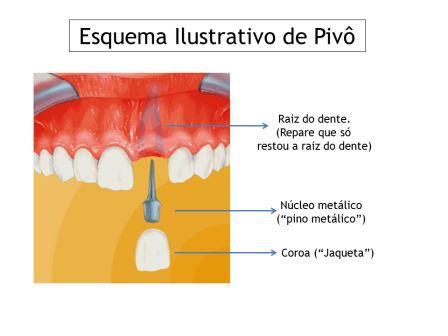 Pivô dentário