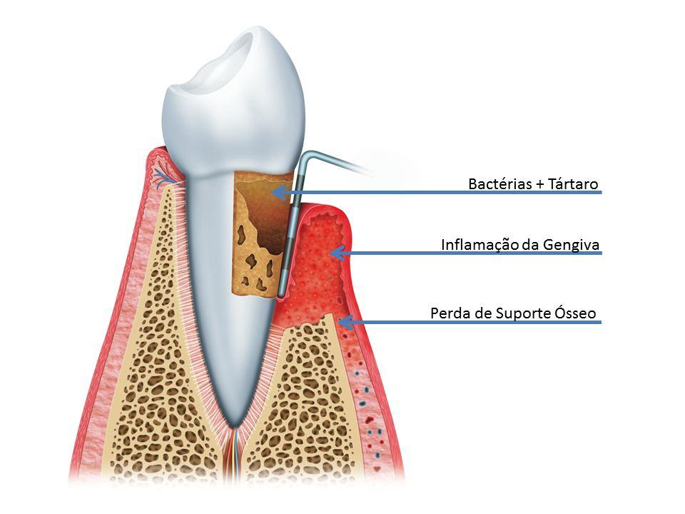 Periodontite Periodontia