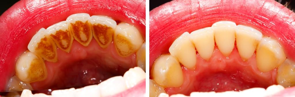 Limpeza de Tártaro e Nicotína nos Dentes