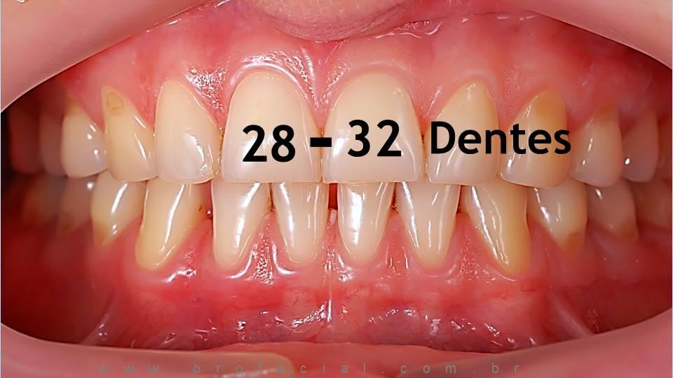 Quantos Dentes Temos incisivos pré-molares molares