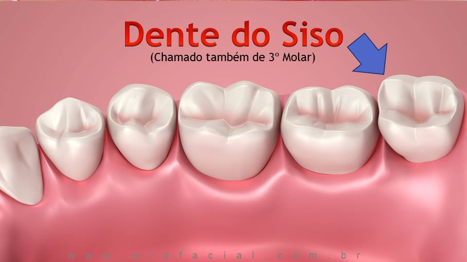 Dente do Siso