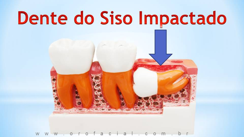 dente do siso incluso