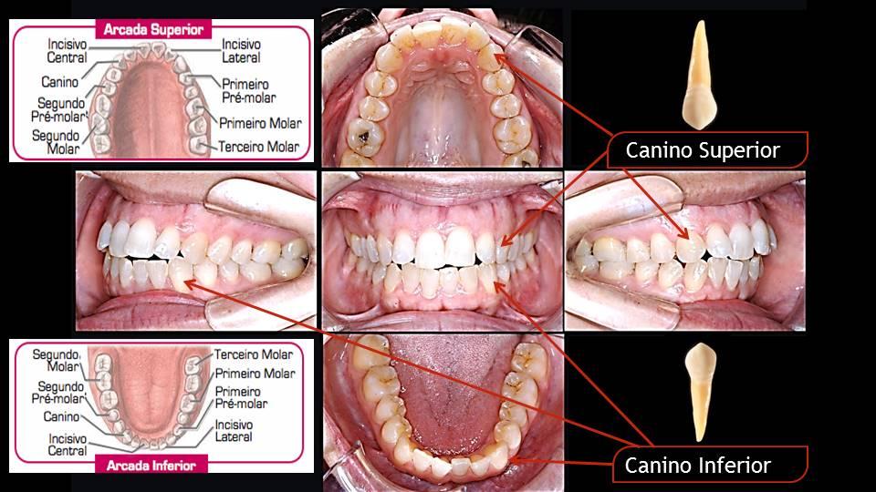 Quais dentes temos Dentes Caninos