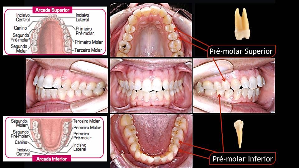 Quais dentes temos Dentes pré-molares