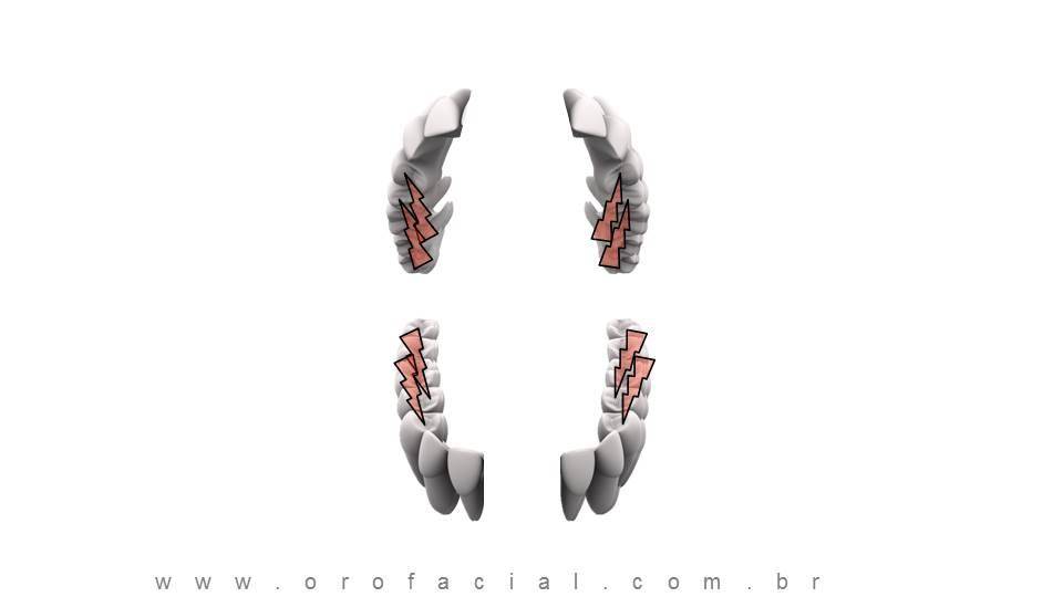 Perda de dentes Incisivo