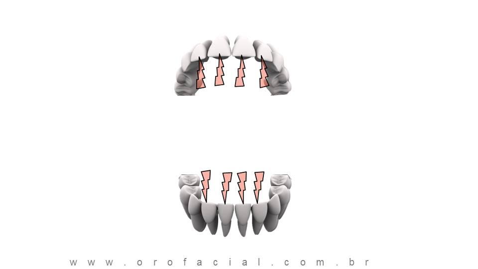 Perda de Dentes Molares