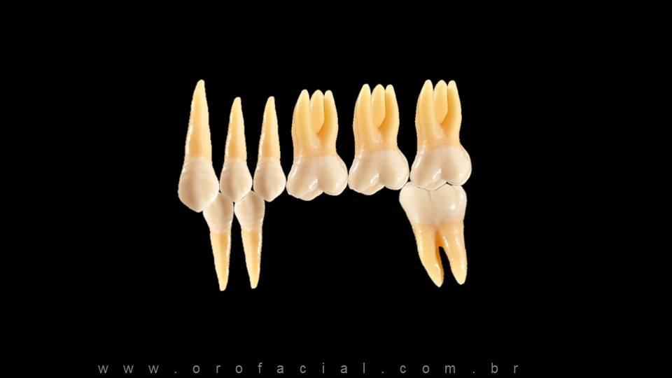 Ausência Dentes