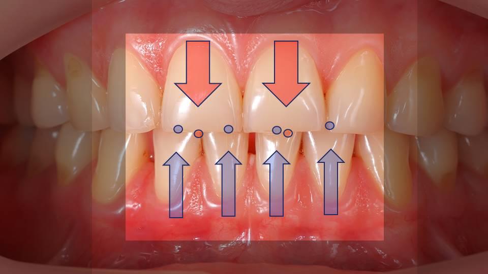 Contato dentes