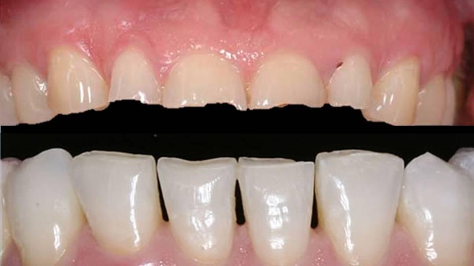 Desgaste dentes