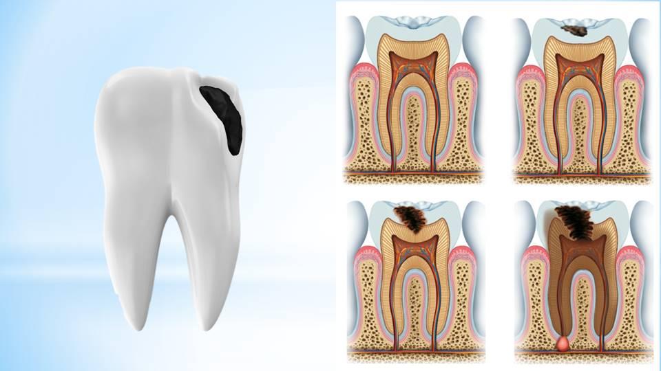 Cárie nos dentes