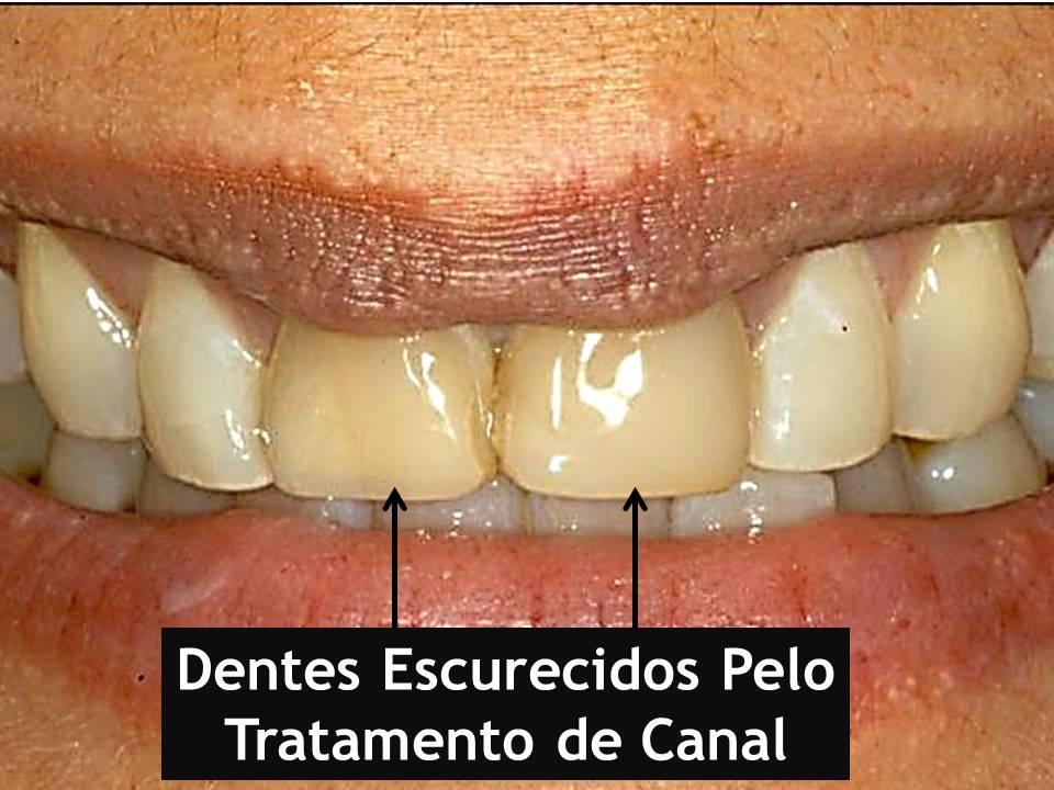 Como clarear os dentes: Escurecimento pelo Tratamento de Canal