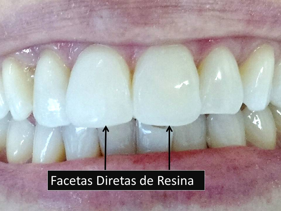 Como Clarear os dentes Facetas de Resina