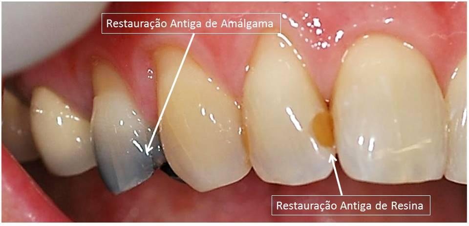 Clareamento dos Dentes Restauração Antiga