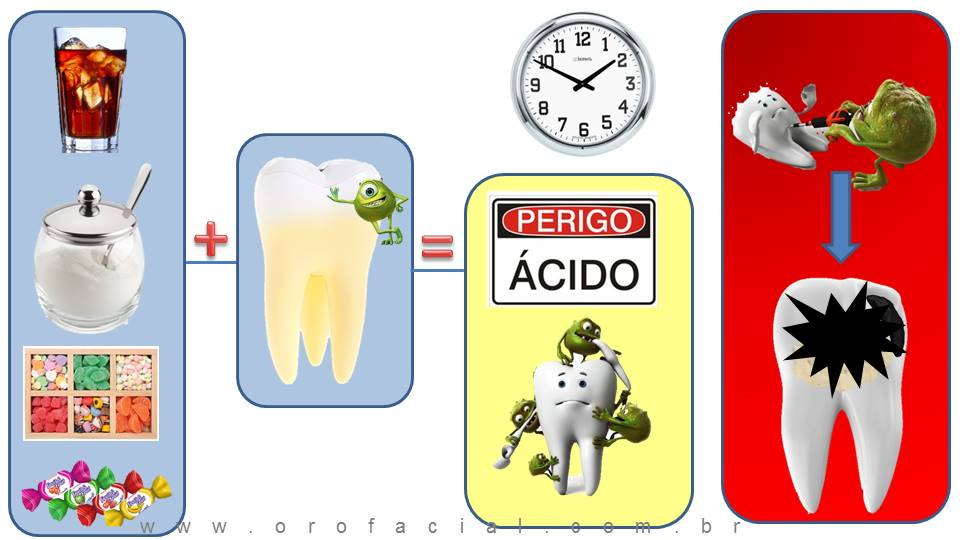Cárie Dental Mecanismo