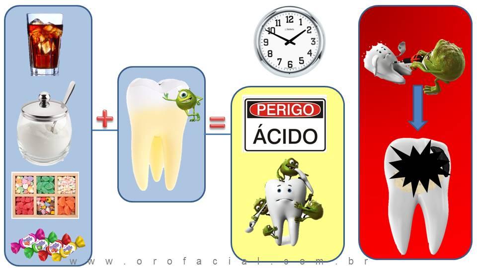 Cárie Dental Mecanismo