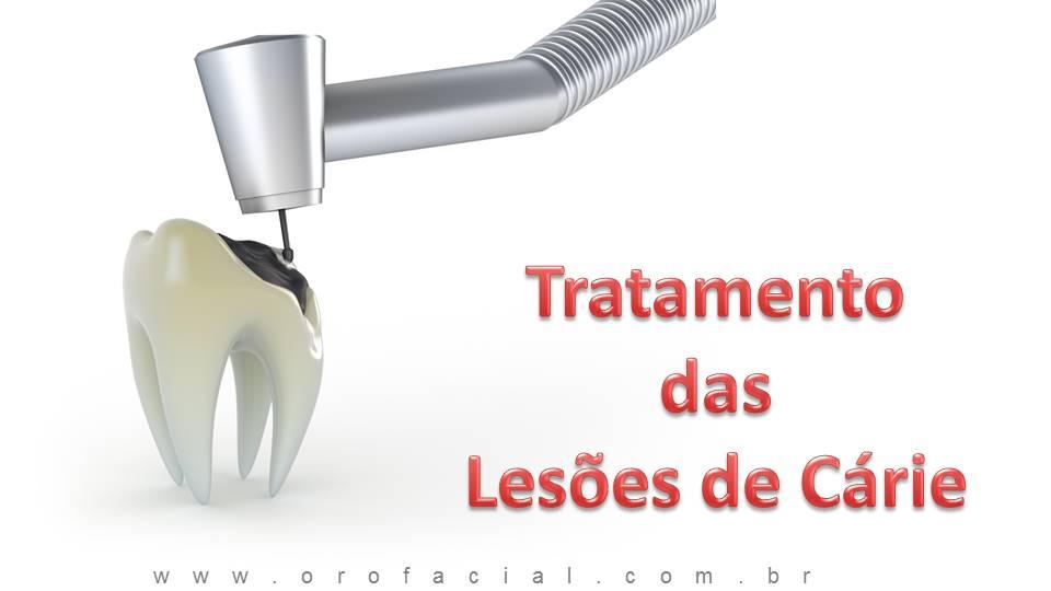 Cárie Dental Tratamento
