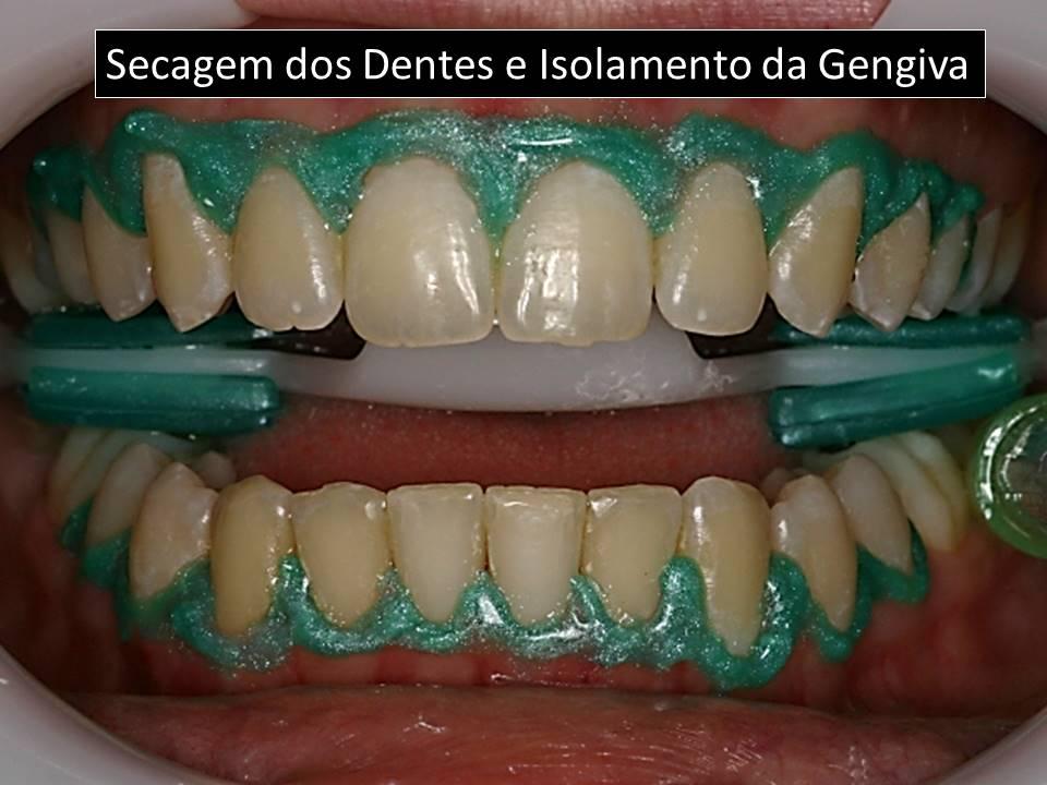 Como clarear os dentes: Secagem e isolamento da gengivas