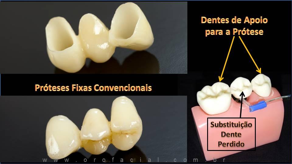 Prótese Dental Fixa 3 Elementos